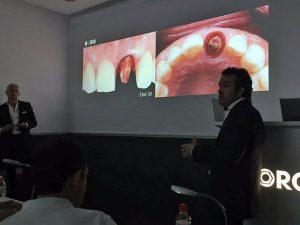 Segunda Edición del curso protocolo BOPT sobre diente e implante